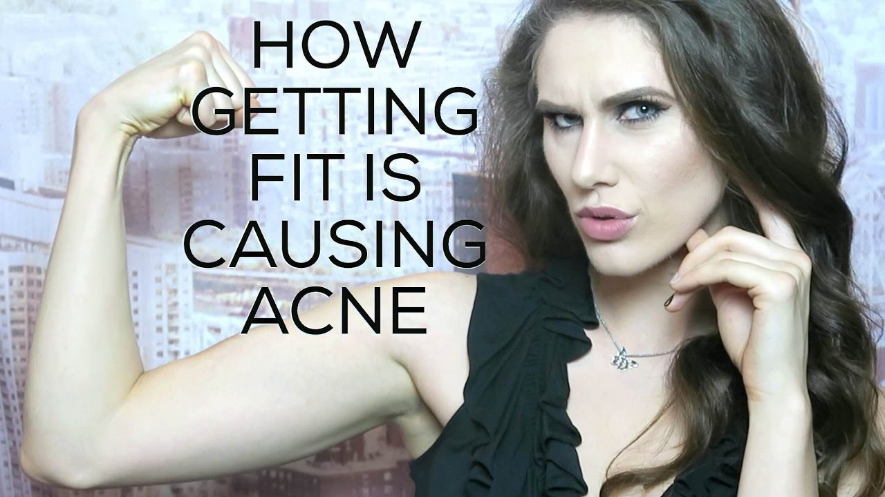 how-getting-fit-is-giving-you-acne-inspire-magazine-is-here-cassandra-bankson