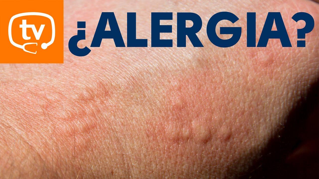 granitos en las piernas alergia