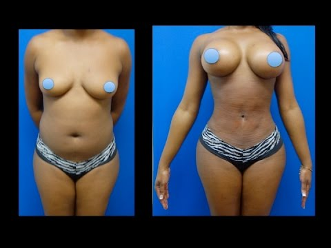 Breast Enhancement Before After Photos in Dallas, TX