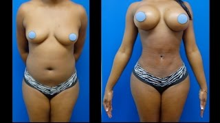 breast augmentation and hips surgery by dr hourglass houston dallas austin san antonio tx