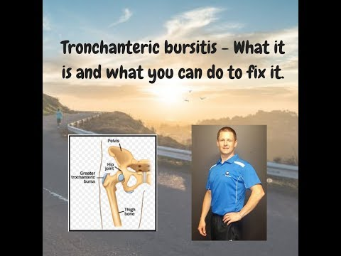 Tronchanteric bursitis - What it is and what you can do to fix it