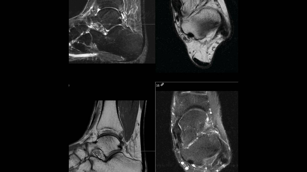 Wrong oblique axial plane on ankle MRI - YouTube