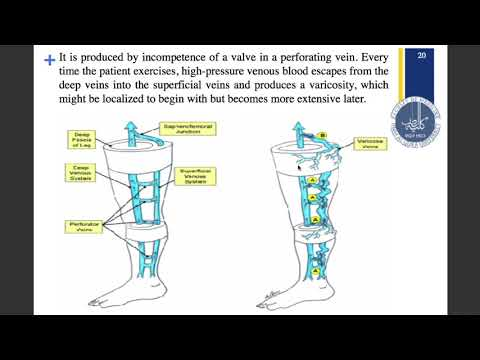 Clinical Importance Of Venous Drainage Of Lower Limb Anatomy Youtube