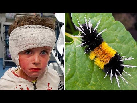 Choć Ta Gąsienica Wygląda Nieszkodliwe, z Jej Powodu Był Hospitalizowany 4-letni Chłopiec