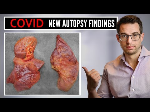 What Doctors Are Learning From Autopsy Findings of New Coronavirus Patients | COVID-19