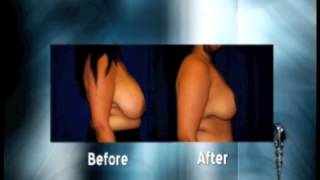 Breast Reduction - Before and After Plastic Surgery Thumbnail