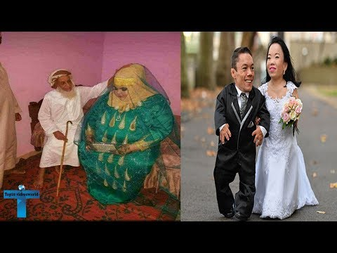 Top 10 Most Abnormal & Unbelievable Couples That Prove Love Is Real