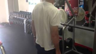 Aberrant side bending movement