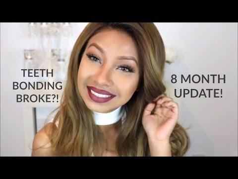 teeth-bonding-|-fixing-gap-teeth-without-braces-|-8-month-update