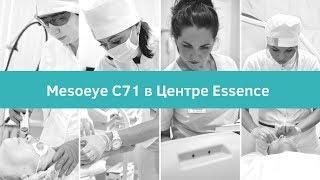 Mesoeye С71 в Центре ESSENCE