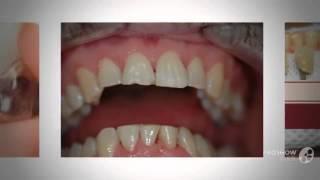 отбеливание зубов air flow цена   - Как отбелить зубы дома(http://rabotadoma.luzani.ru/karandash/ Эффективная система отбеливания зубов Если у вас большое почернение зубов испол..., 2014-09-14T06:55:03.000Z)