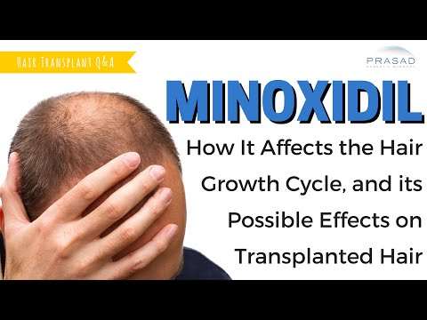 How Minoxidil Works with the Hair Growth Cycle, and its Possible Effects on Hair Grafts
