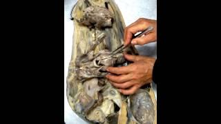 полостные операции на брюшной полости