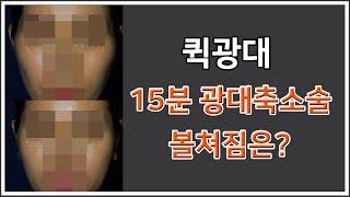 퀵광대 방식의 15분 광대축소술과 볼쳐짐이란? feat…