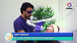 Dr. Nihat Dik - Leke Tedavisi