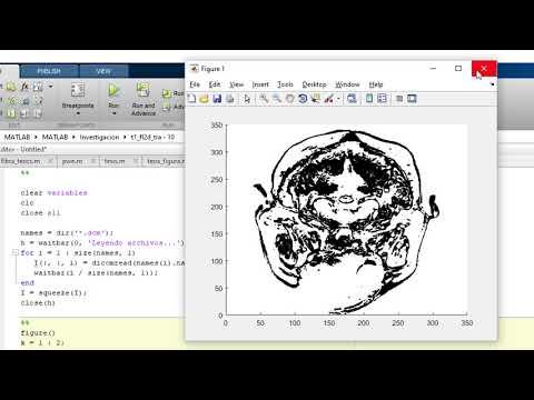 Download Matlab Image Convert 2d To 3d Surface MP3, 3GP, MP4