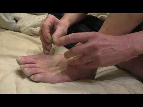 Неудачная попытка проколоть сухожилие пальца ноги