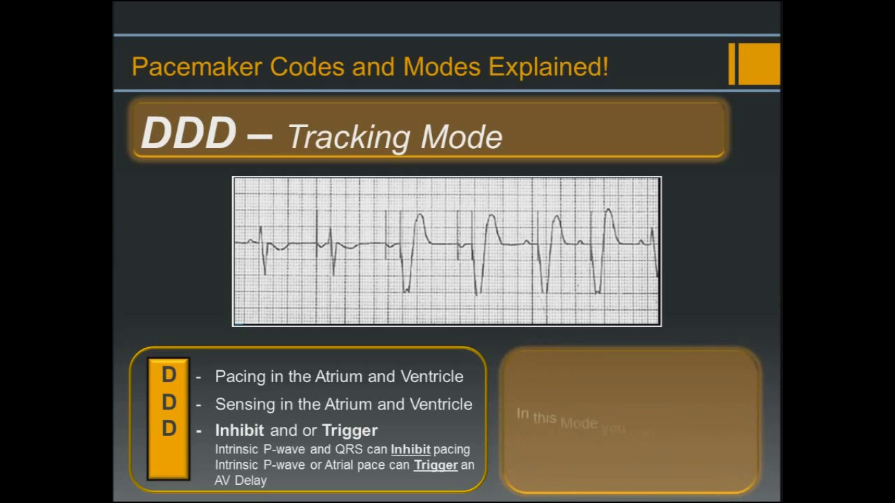 Pacemaker Codes And Modes - Explained