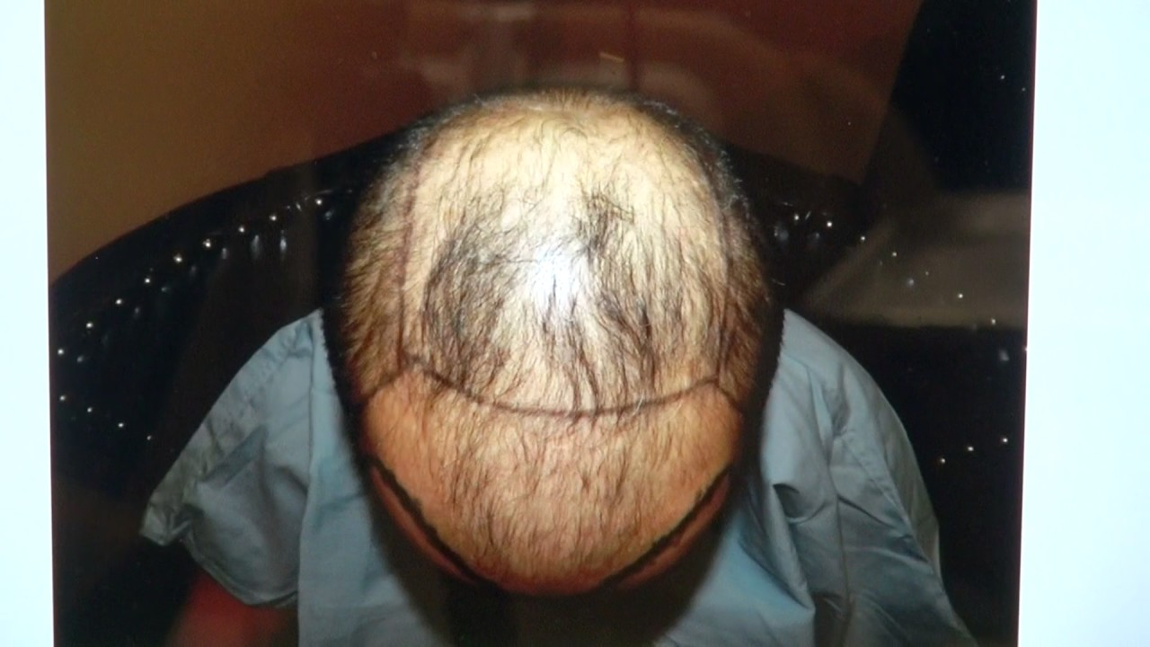 Advanced hair loss before after transplant surgery dr diep http advanced hair loss before after transplant surgery dr diep httpmhtaclinic urmus Gallery