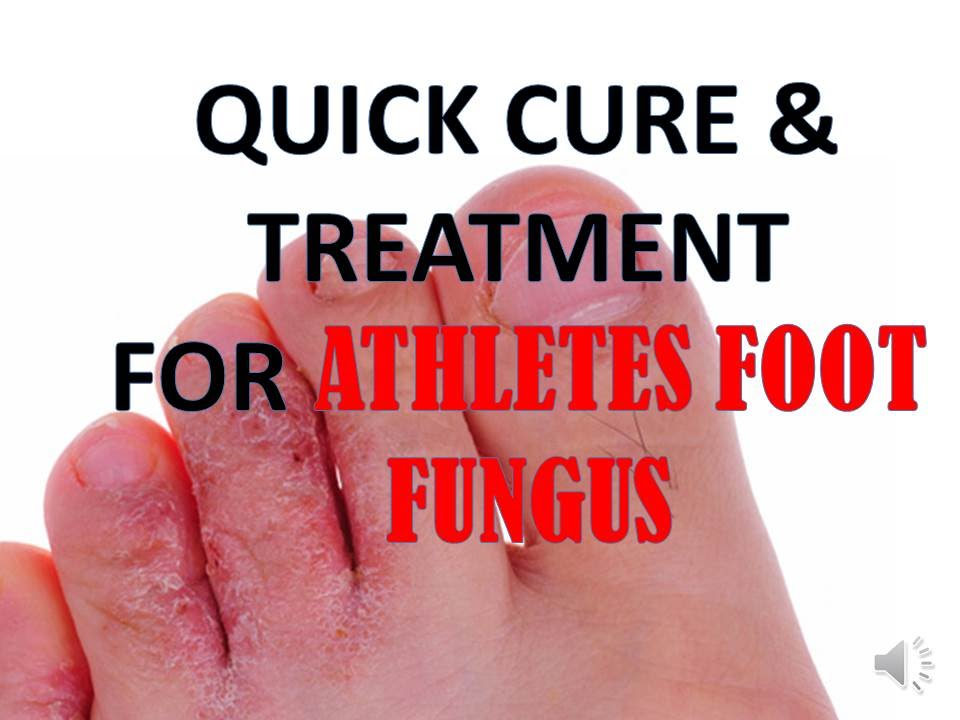 treatment Athletes foot