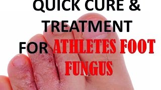 Cure And Treatment Athletes Foot Quickly