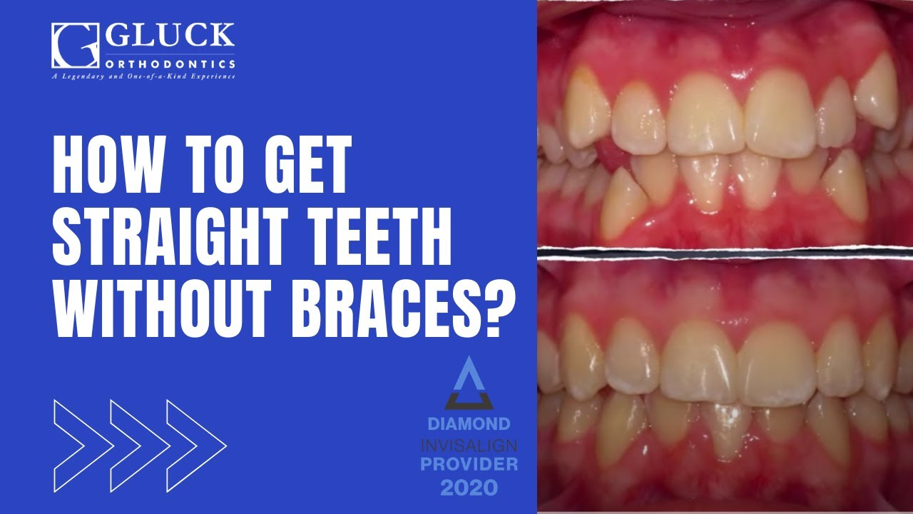 Get straight teeth - How To Get Straight Teeth Without Braces Gluck Orthodontics