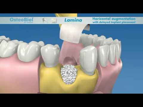 Defecto de tres paredes OsteoBiol Lamina