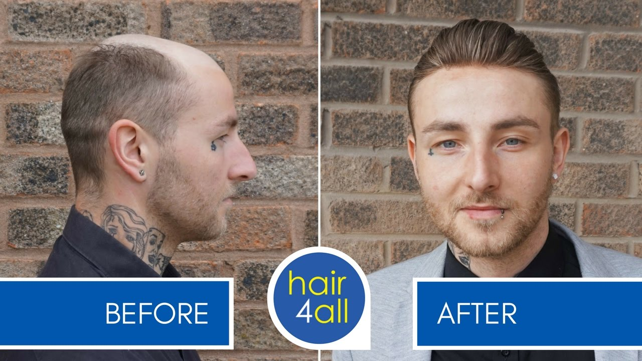 How Effective Is A Hair Replacement System For Men At The