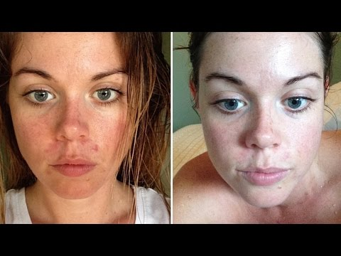 HOW TO HEAL YOUR SKIN WITHIN 24 HOURS - Raw Nourishment