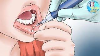 symptômes Cancer de la bouche