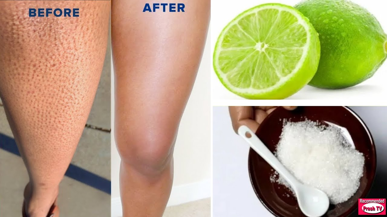 How to Get Rid of Strawberry Leg in 1 day with Lemon & Sugar / Remove Keratosis Pilaris & Dark Spot