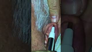 Kulak Akupunkturu Hem Yapıyoruz Hem Yaptırıyoruz 1