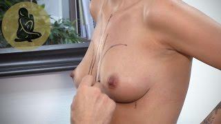 Brustvergrößerung bei Dr. Osthus, Video mit Altersbeschränkung