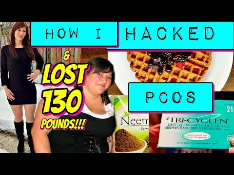 how-i-hacked-pcos-&-lost-130-pounds-(complete-guide)