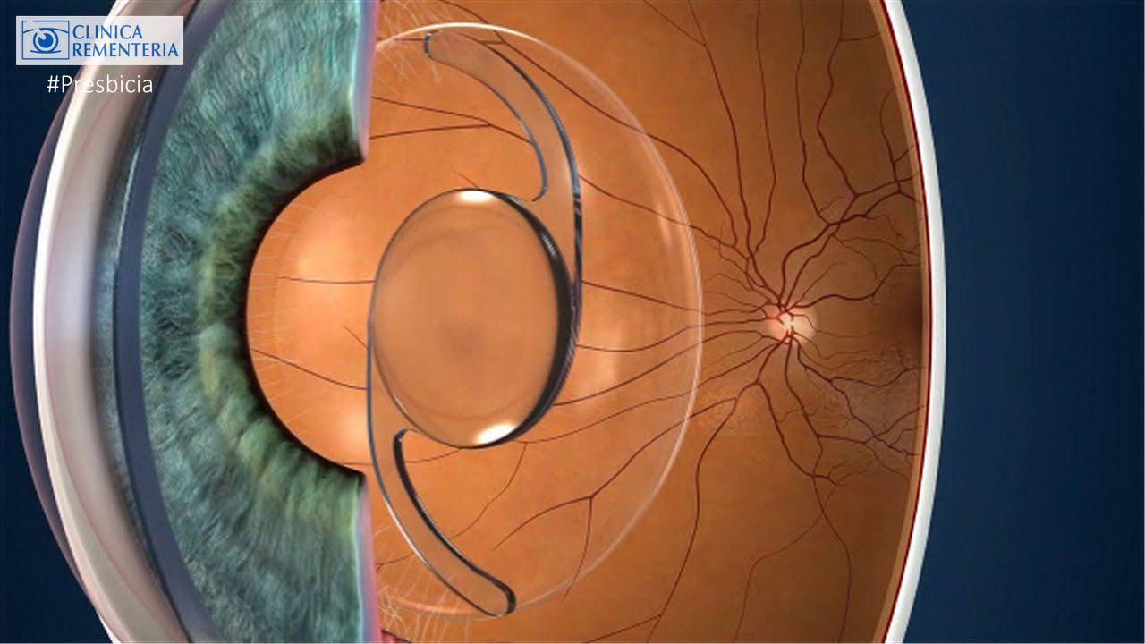 d39a6a6042 Lente Trifocal para el tratamiento de la Presbicia y la Catarata ...