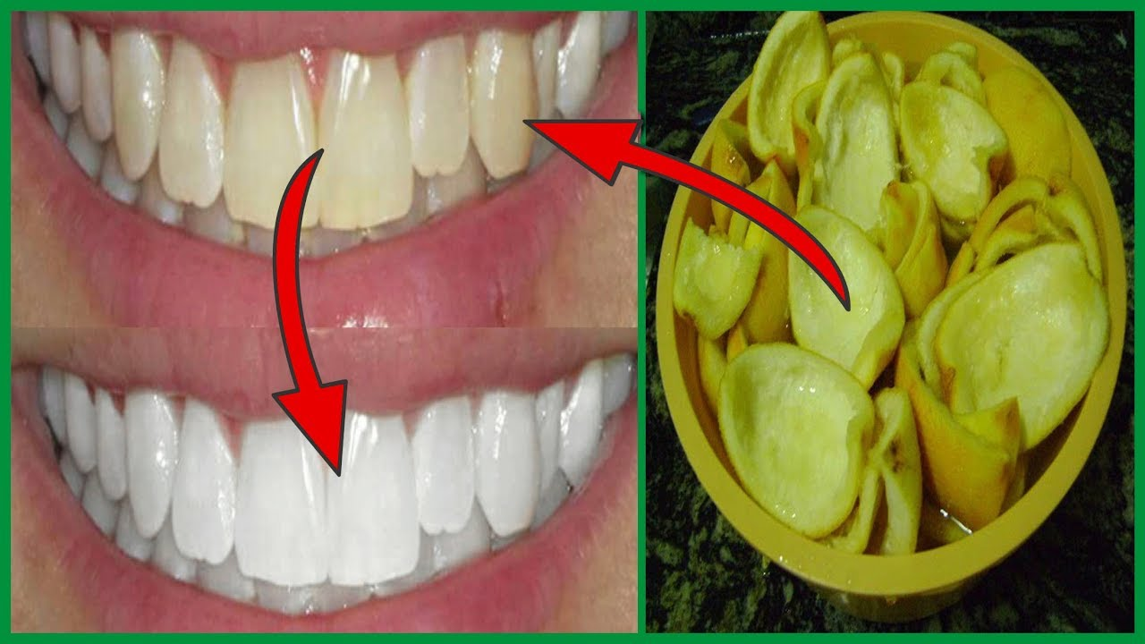 Como Clarear Os Dentes Em 1 Minuto Por Menos De 3 Reais Dente