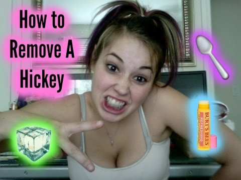 How To Remove A Hicky