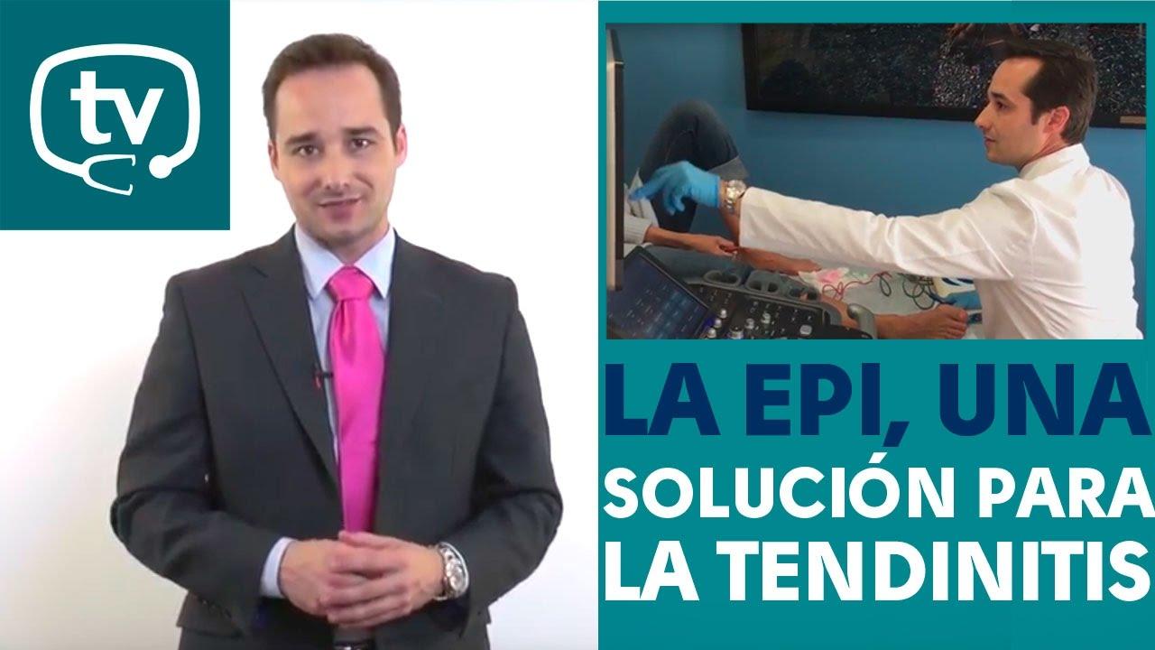 Medicinatv A TendinitisVídeos EpiUna La Solución 8kXOn0wP