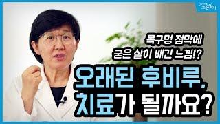 [댓글읽기] 오래된 후비루, 정말 치료가 될까요?