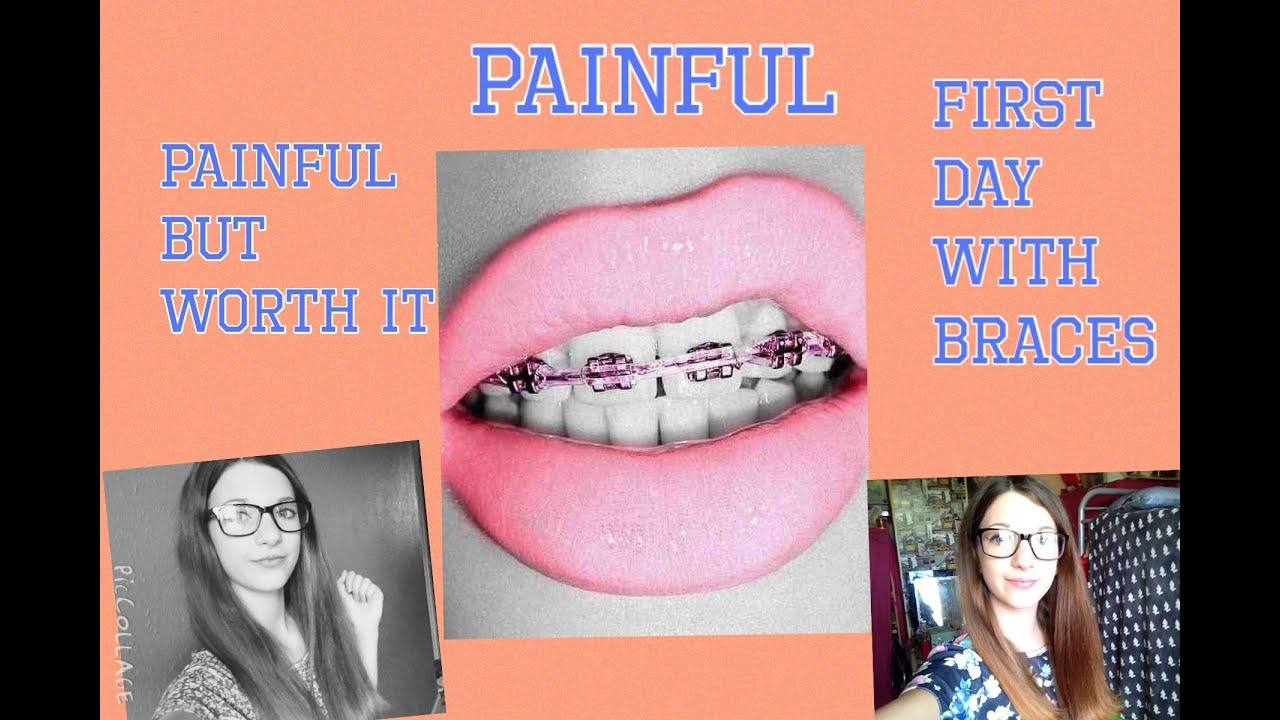 how to get rid of first day braces pain