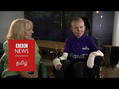 UK's first dedicated treatment centre for people with rare genetic conditions: BBC Tamil NEWS