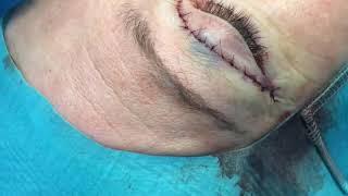 видео Лазерная блефаропластика Madonna Lift