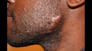 GUARANTEED HOME REMEDIES TO GET RID OF KELOIDS AND SCARS