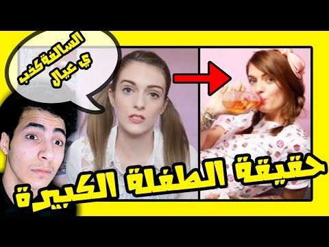 حقيقة خبر ( بنت عمرها 21 عايشة حياتها كالاطفال) ! , اطول بث مباشر بالعالم !!