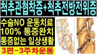 척추관협착증완치운동! 다리저림 엉치통증해결! spina…