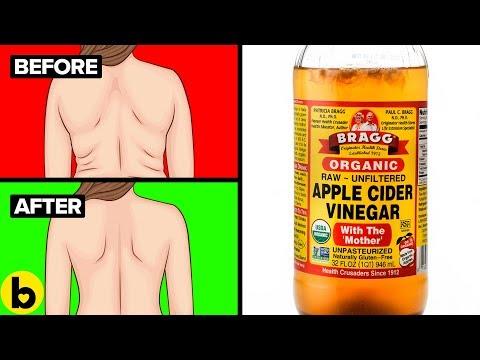 9 Amazing Health Benefits Of Apple Cider Vinegar