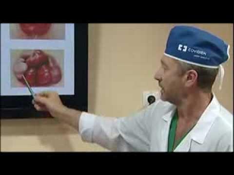 Удаление геморроя лазером: цена операции, отзывы о лечении