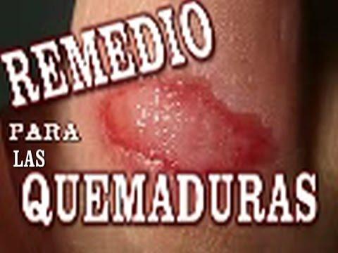como curar quemadura de cera en la cara