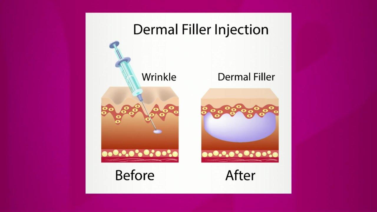 Dermal Filler Injections - YouTube
