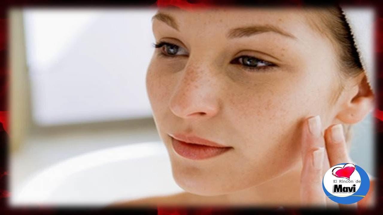Crema casera para manchas oscuras en la cara